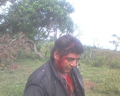 José Santiago Cabrera agredido por el MIOCUP en junio de 2012